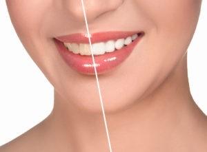 Сколько стоит отбелить зубы
