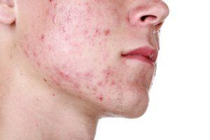 Самые действенные приемы для очистки кожи от прыщей