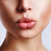 Средства от герпеса на губах