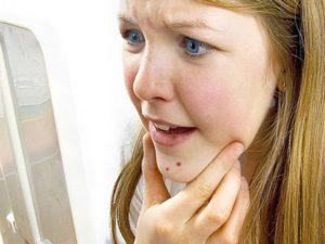 Почему появляются угри на лице