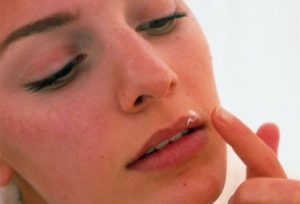 Как лечить герпес на губах народными средствами